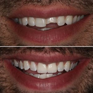 Porcelain-Crowns-Before-and-After